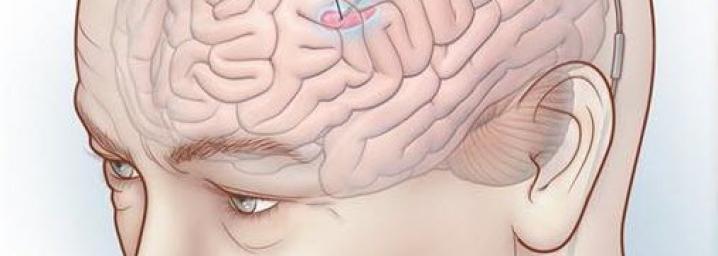 Zbulimi i hershëm i sëmundjes se Parkinsonit nepermjet shkrimit te dores