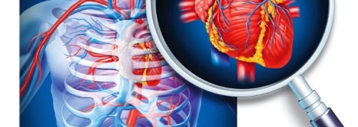 Dhimbja e gjoksit dhe Sindroma Koronaro- Akute